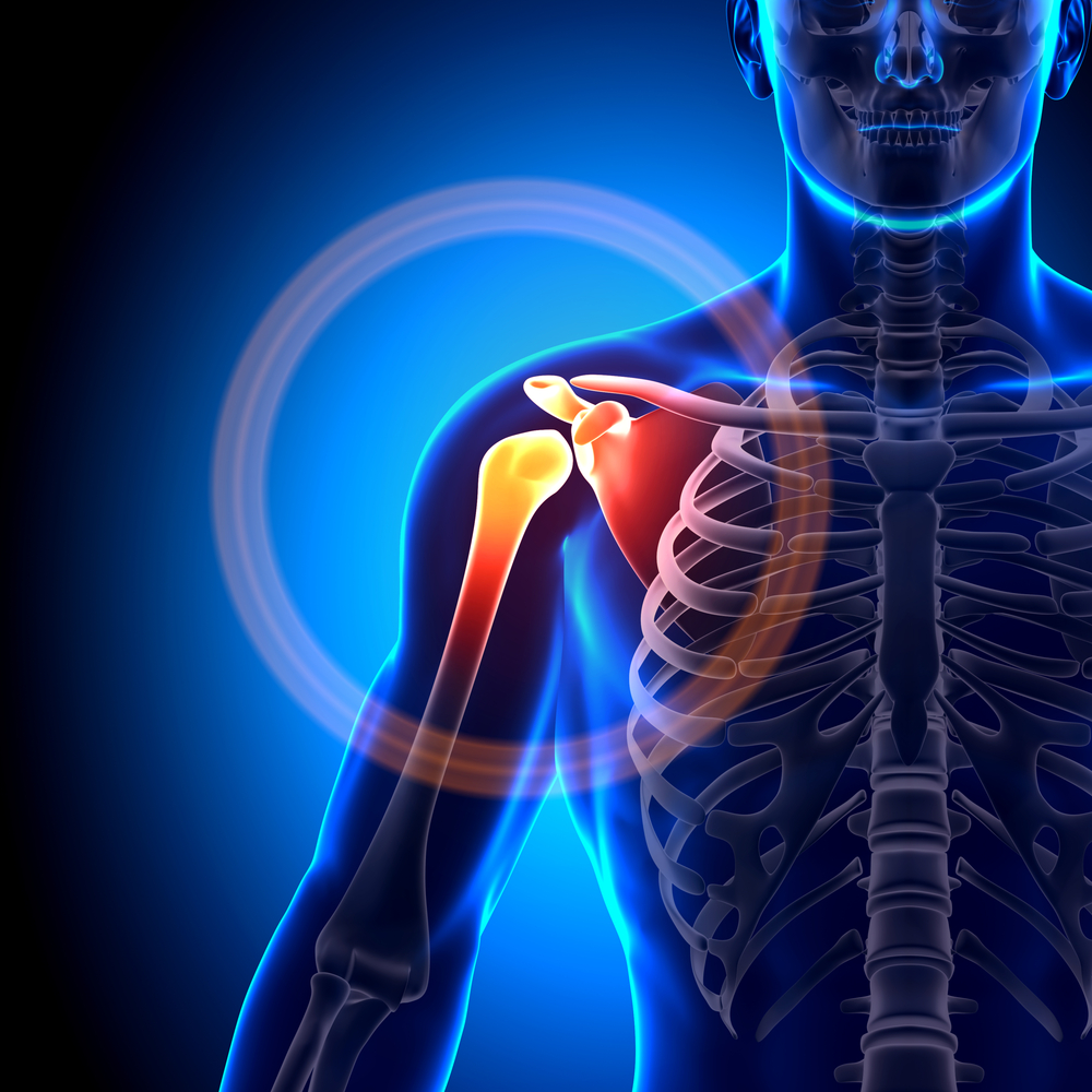 Артрит плечевого сустава: причины, симптомы, лечение и диета 86